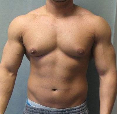 Alfa img - Showing > Minor Gynecomastia
