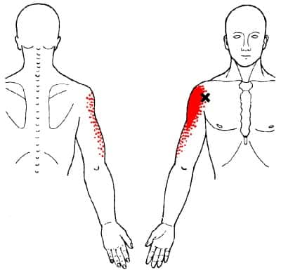anterior deltoid trigger point