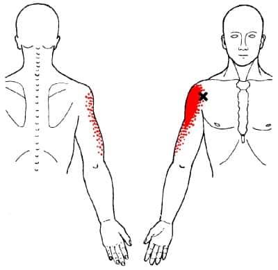 anterior deltoid trigger point