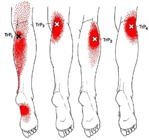 gastrocnemius trigger point