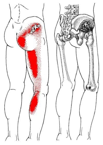 The Definitive Guide to Gluteus Medius Anatomy, Exercises & Rehab