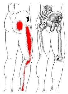 gluteus minimus trigger points