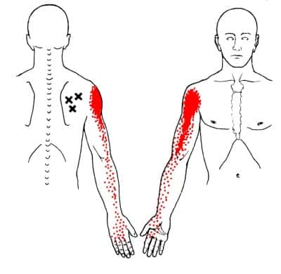 infraspinatus trigger points