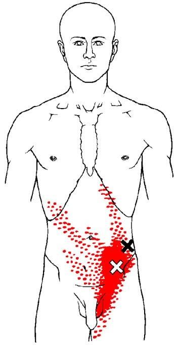 internal-oblique-trp