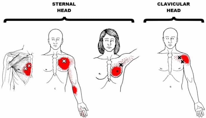 pectoralis major trigger points