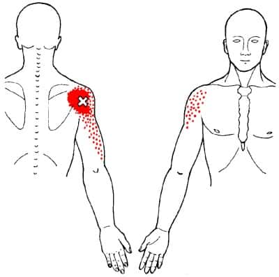 Posterior Deltoid on left side pain location