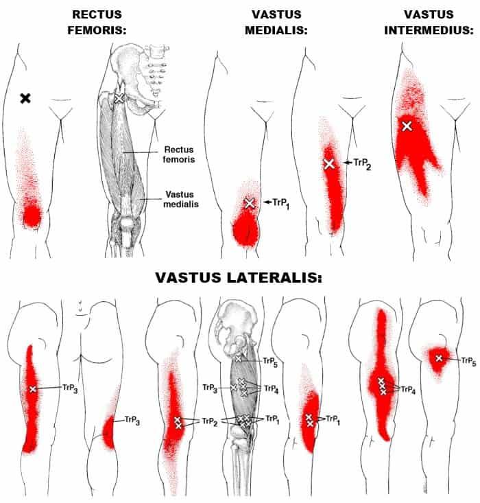 quadriceps femoris trigger points