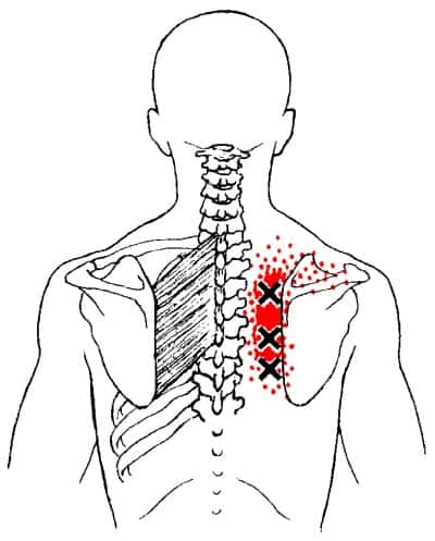 rhomboids trigger points