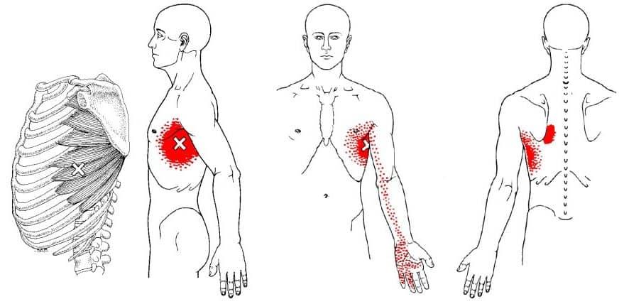 Serratus anterior trigger point