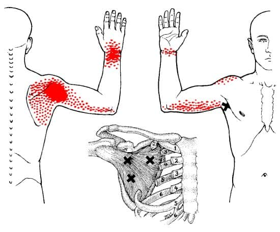 Subscapularis trigger points