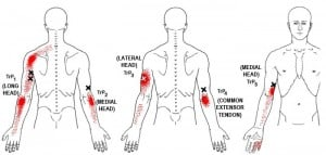 triceps brachii trigger points