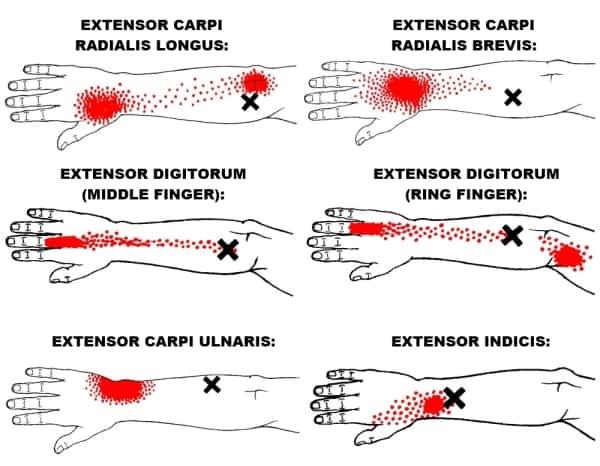 wrist extensor trigger points