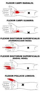 wrist flexor trigger points