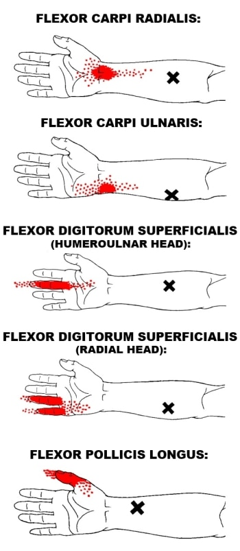 wrist flexor trigger points